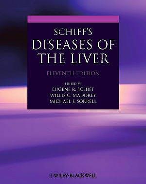 Portada del libro 9780470654682 Schiff's Diseases of the Liver