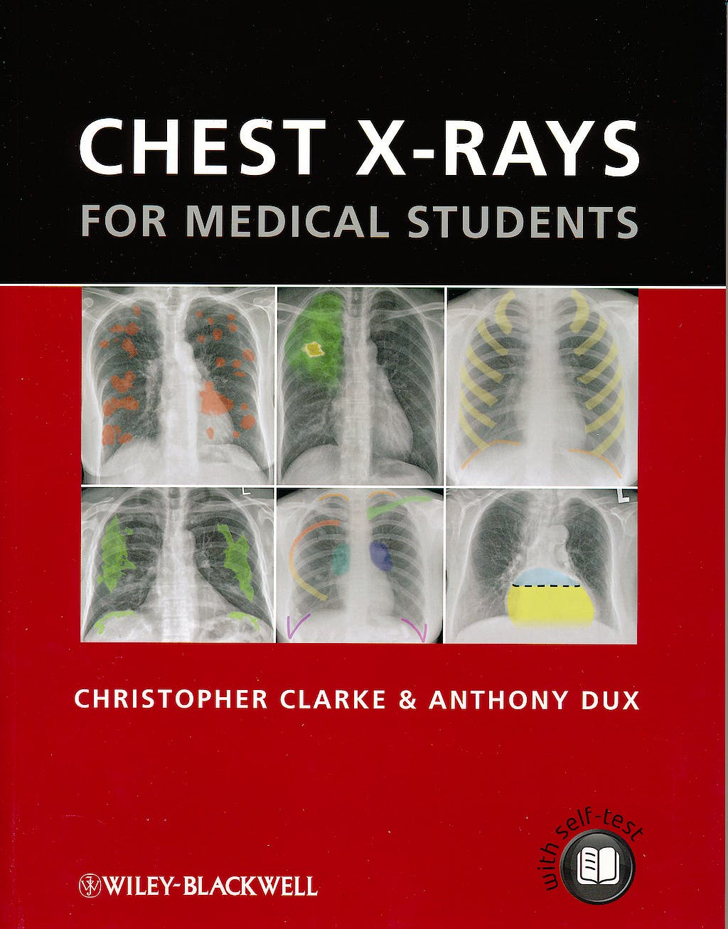 Portada del libro 9780470656198 Chest X-Rays for Medical Students