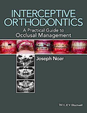 Portada del libro 9780470656211 Interceptive Orthodontics. a Practical Guide to Occlusal Management