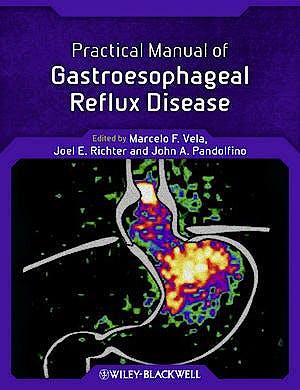 Portada del libro 9780470656266 Practical Manual of Gastroesophageal Reflux Disease