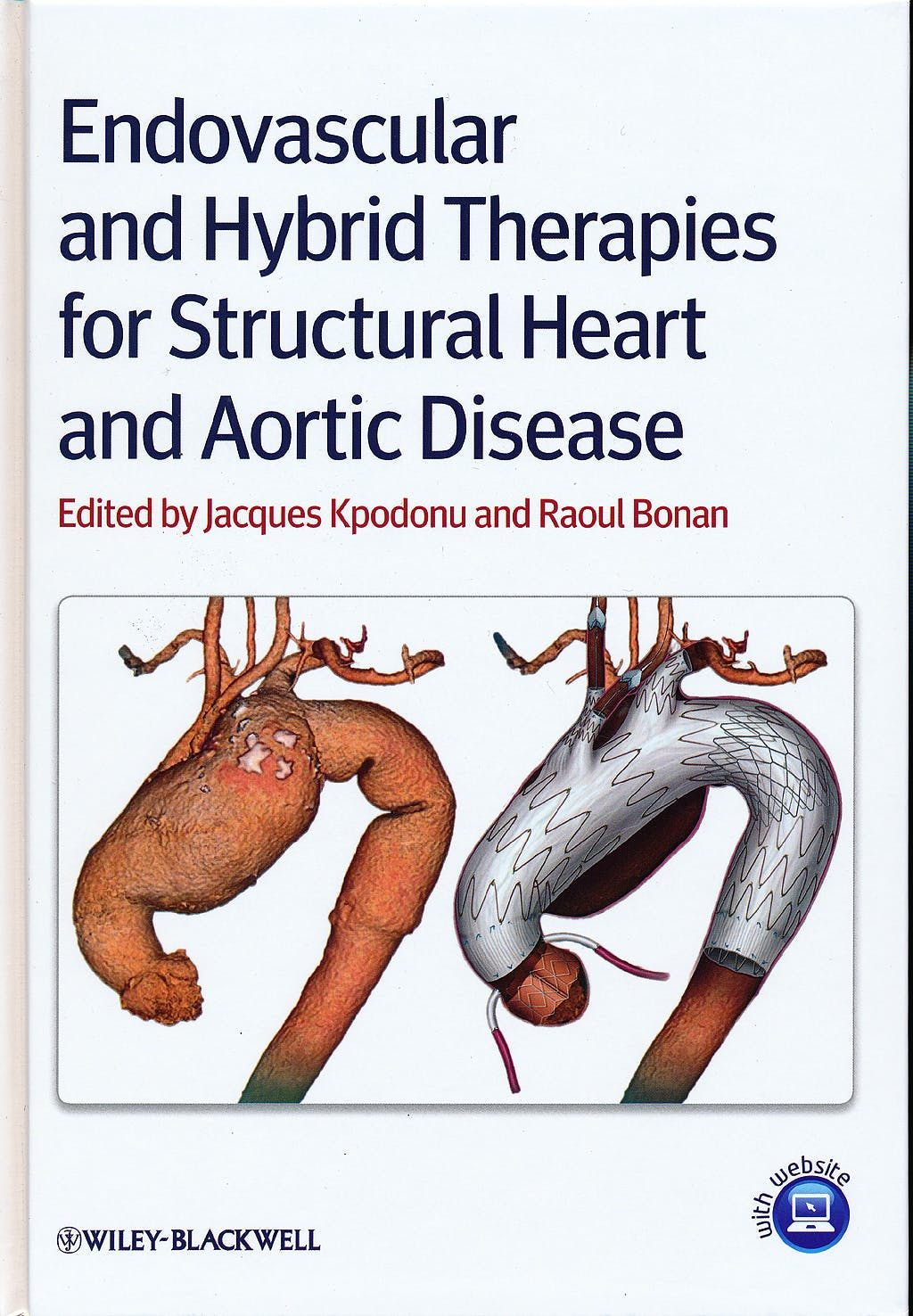 Portada del libro 9780470656396 Endovascular and Hybrid Therapies for Structural Heart and Aortic Disease