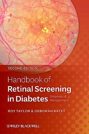 Portada del libro 9780470658499 Handbook of Retinal Screening in Diabetes. Diagnosis and Management