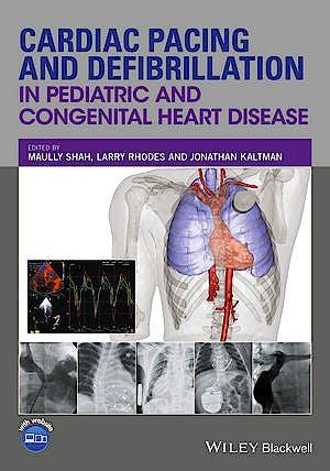 Portada del libro 9780470671092 Cardiac Pacing and Defibrillation in Pediatric and Congenital Heart Disease