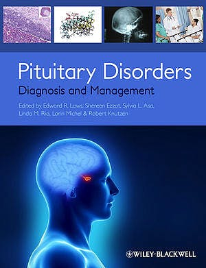 Portada del libro 9780470672013 Pituitary Disorders. Diagnosis and Management