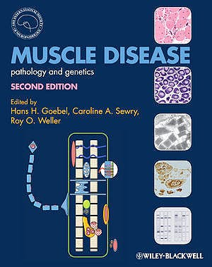 Portada del libro 9780470672051 Muscle Disease. Pathology and Genetics