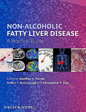 Portada del libro 9780470673171 Non-Alcoholic Fatty Liver Disease: A Practical Guide