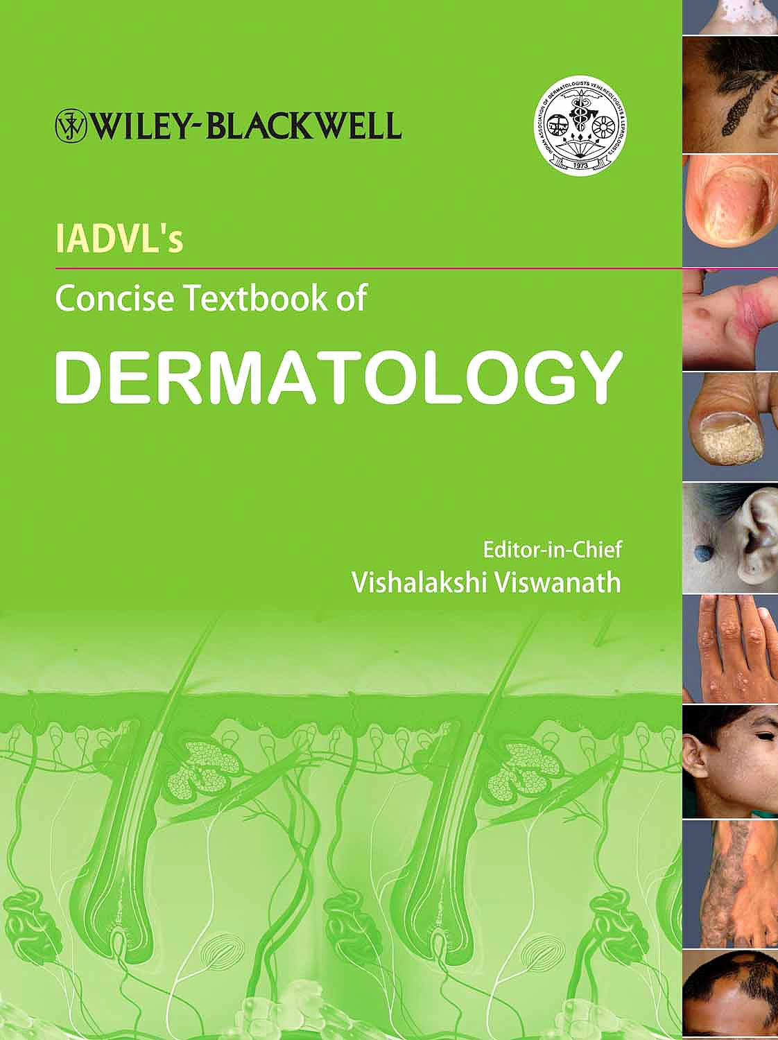 Portada del libro 9780470673584 Iadvl Concise Textbook of Dermatology