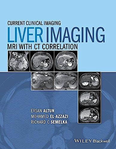 Portada del libro 9780470906255 Liver Imaging. Mri with Ct Correlation