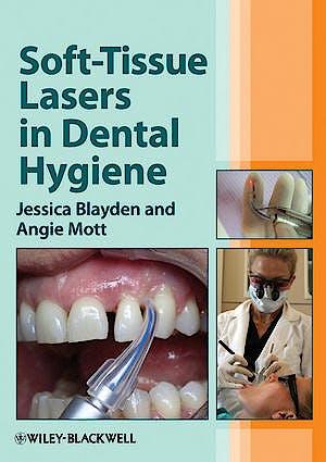 Portada del libro 9780470958544 Soft-Tissue Lasers in Dental Hygiene