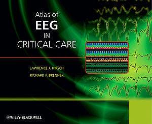 Portada del libro 9780470987865 Atlas of EEG in Critical Care