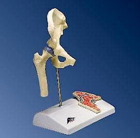 Mini Articulación de la Cadera con Corte Transversal