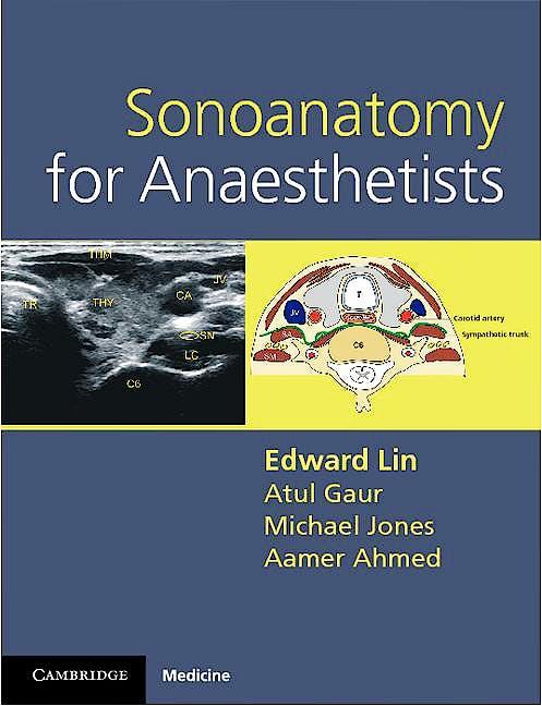 Portada del libro 9780521106665 Sonoanatomy for Anaesthetists