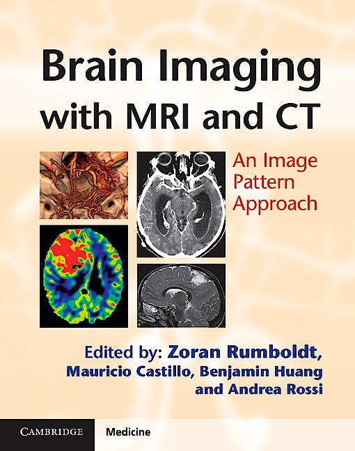 Portada del libro 9780521119443 Brain Imaging with MRI and CT. An Image Pattern Approach