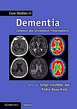 Portada del libro 9780521188302 Case Studies in Dementia. Common and Uncommon Presentation