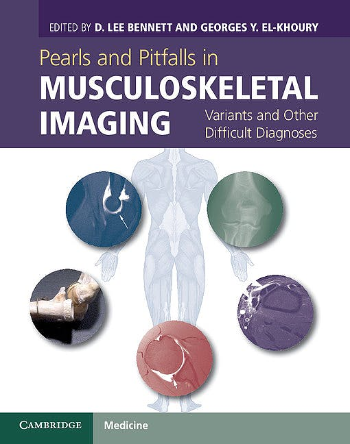 Portada del libro 9780521196321 Pearls and Pitfalls in Musculoskeletal Imaging. Variants and Other Difficult Diagnoses