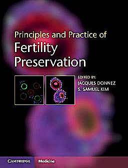 Portada del libro 9780521196956 Principles and Practice of Fertility Preservation