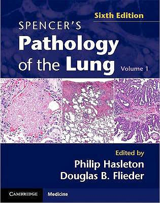 Portada del libro 9780521509954 Spencer's Pathology of the Lung, 2 Vols.