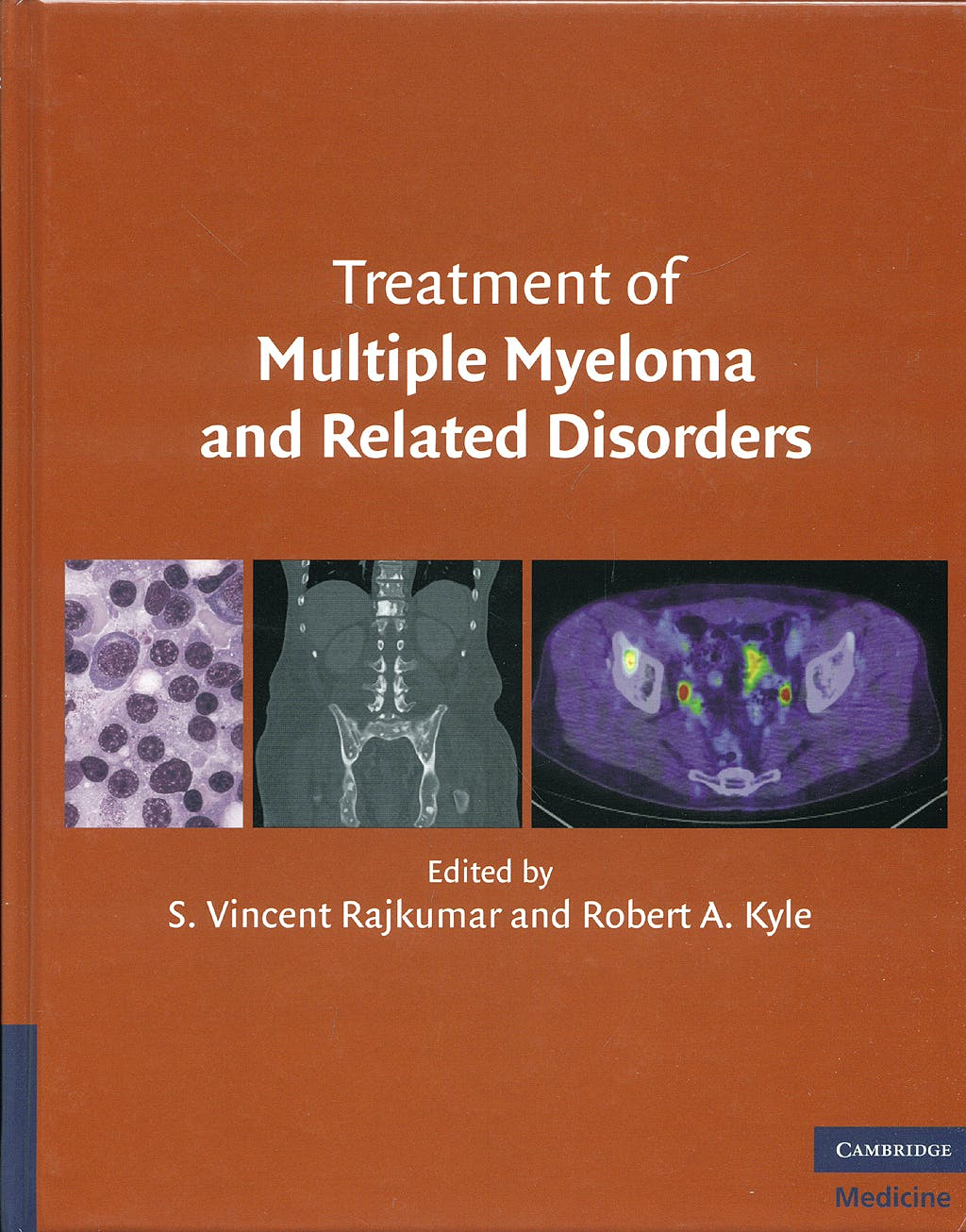 Portada del libro 9780521515030 Treatment of Multiple Myeloma and Related Disorders