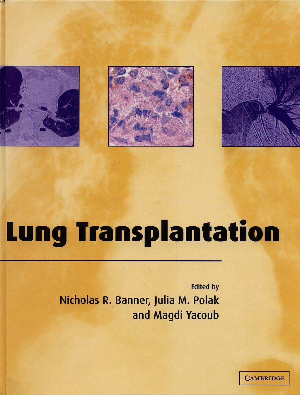 Portada del libro 9780521651110 Lung Transplantation