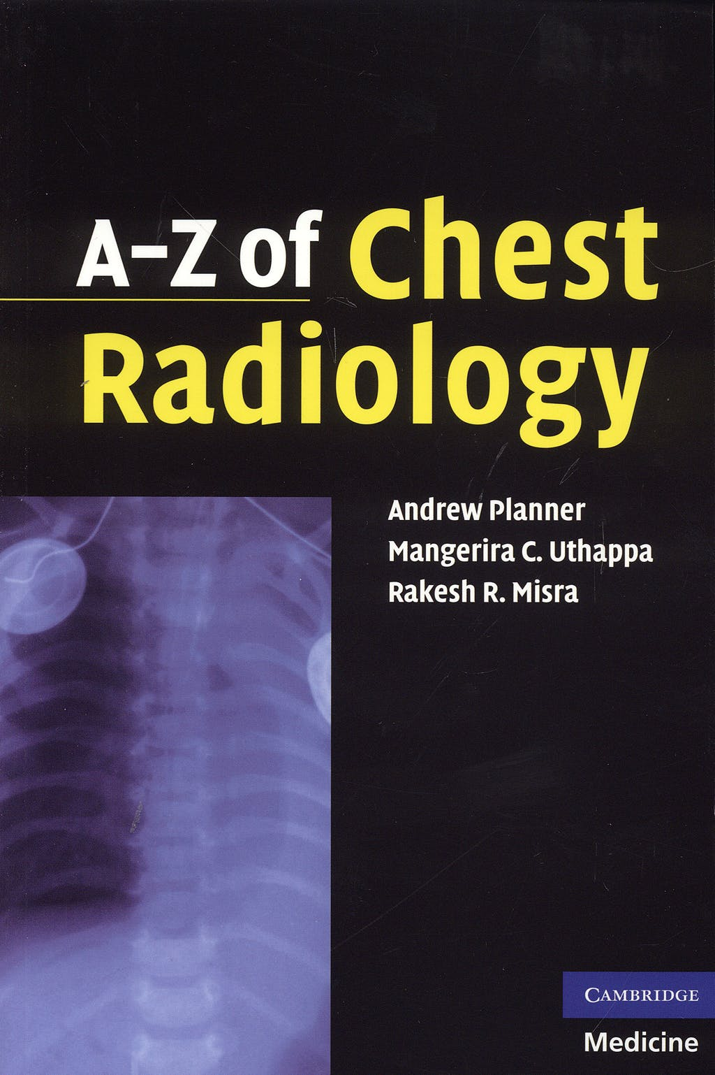 Portada del libro 9780521691482 A-Z of Chest Radiology