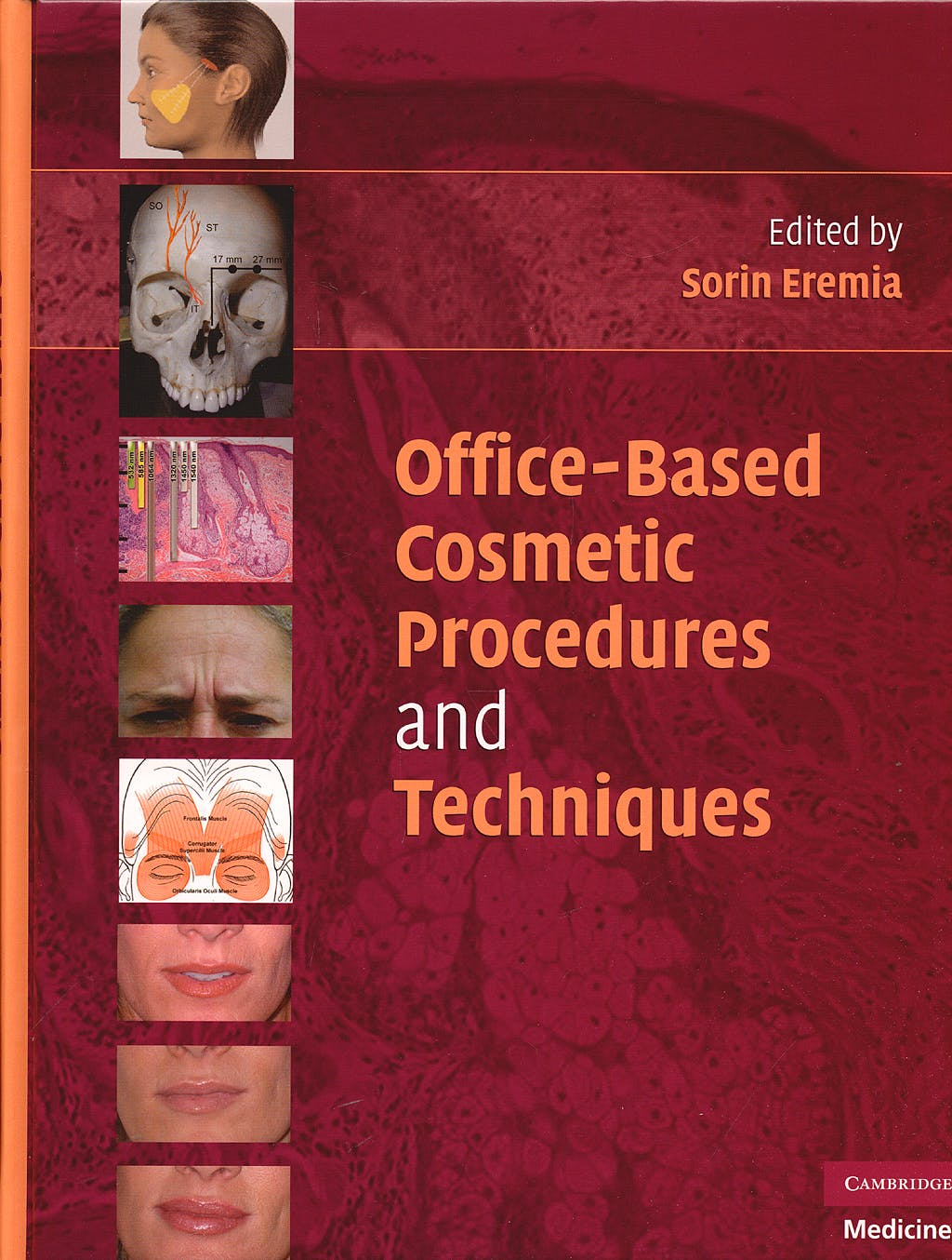 Portada del libro 9780521706520 Office-Based Cosmetic Procedures and Techniques