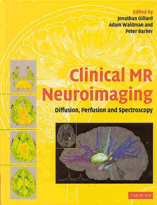 Portada del libro 9780521824576 Clinical Mr Neuroimaging. Diffusion, Perfusion and Spectroscopy