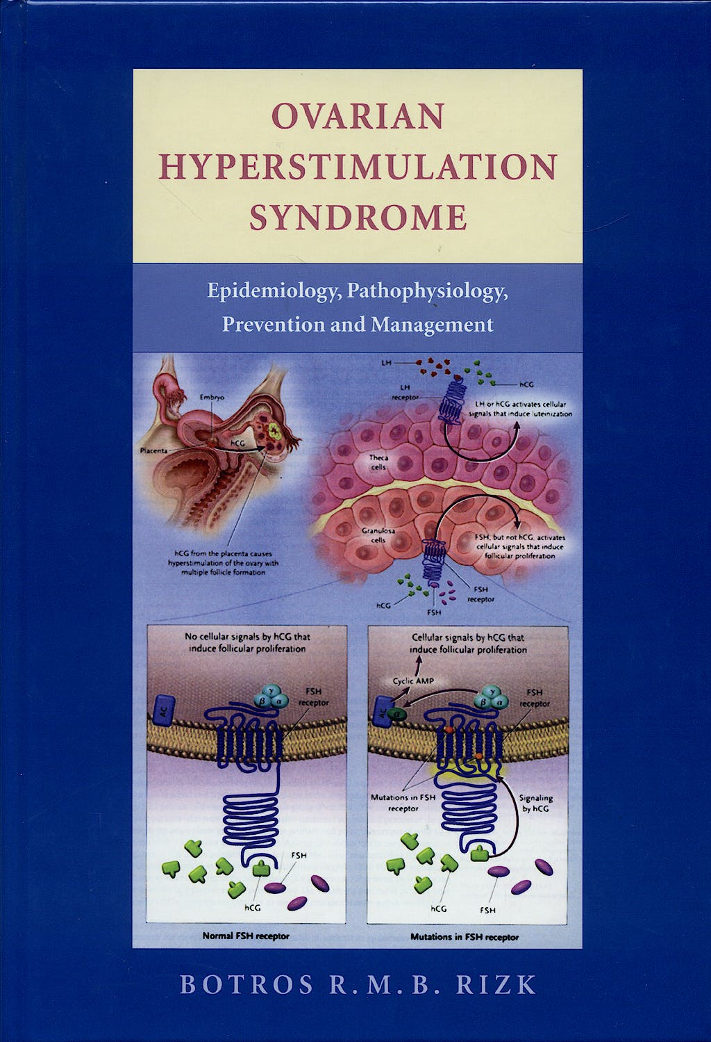Portada del libro 9780521857987 Ovarian Hyperstimulation Syndrome