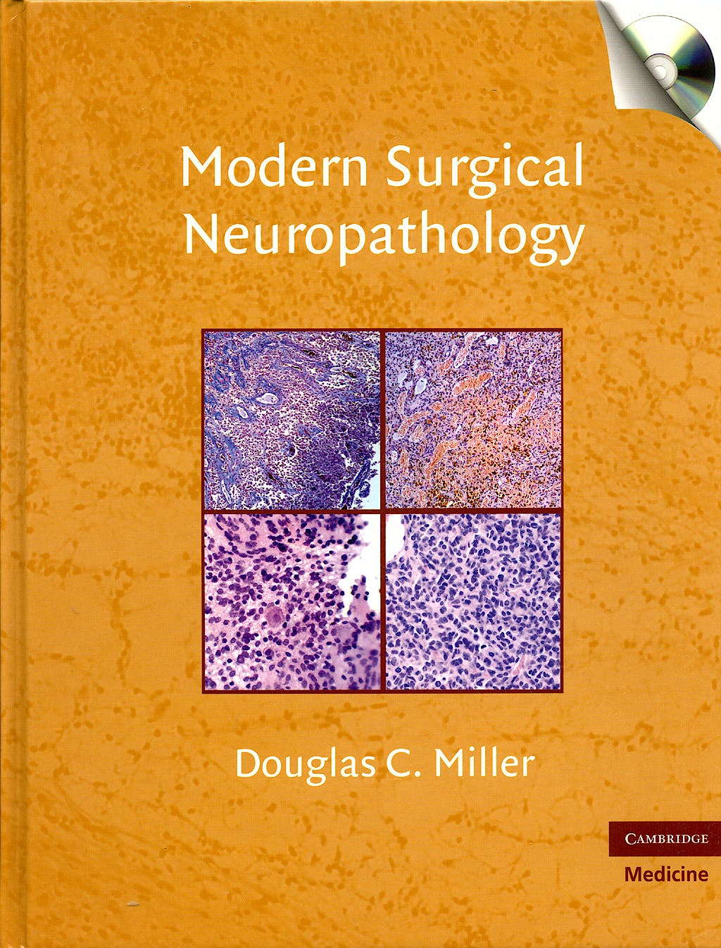 Portada del libro 9780521869324 Modern Surgical Neuropathology + Cd-Rom