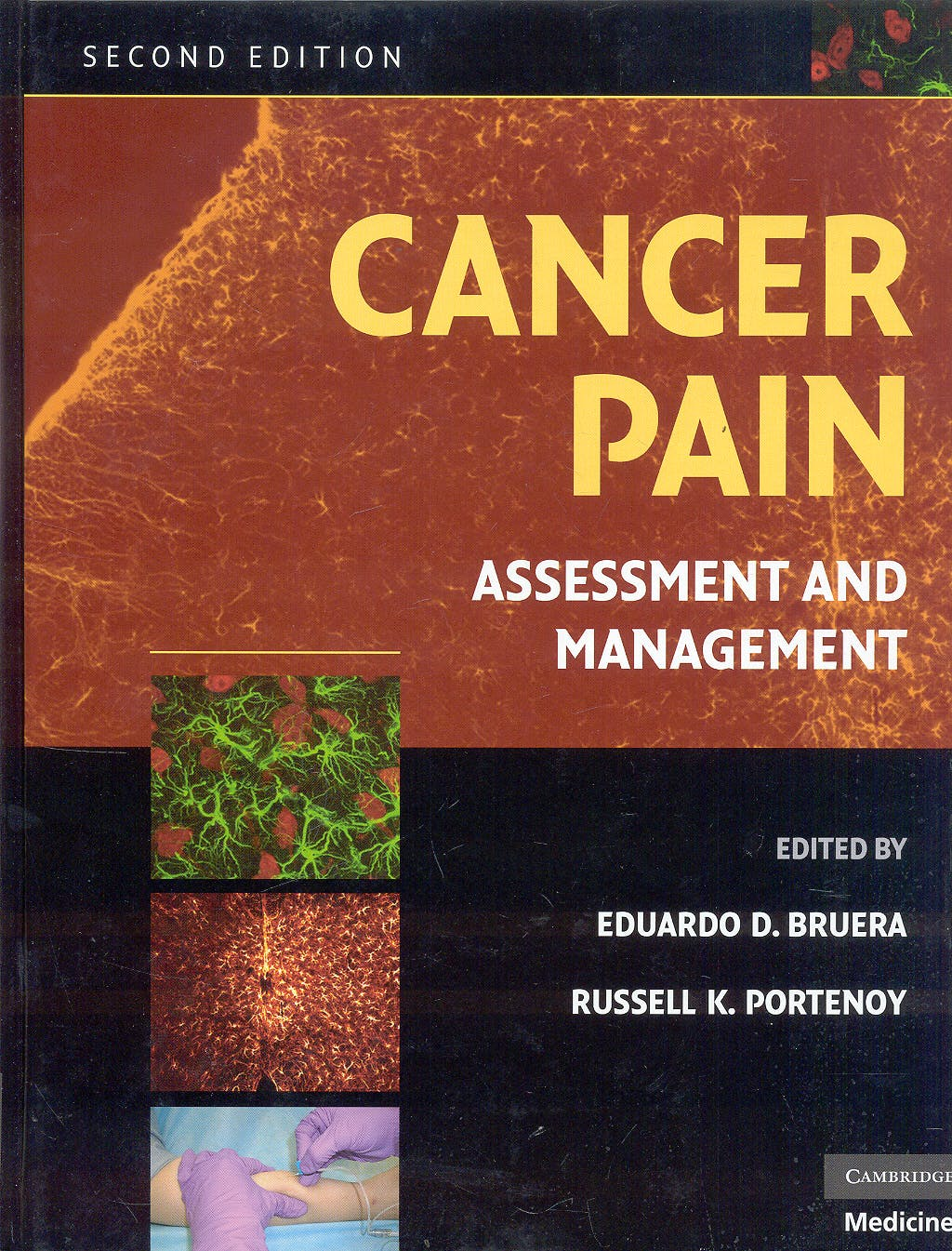 Portada del libro 9780521879279 Cancer Pain. Assessment and Management