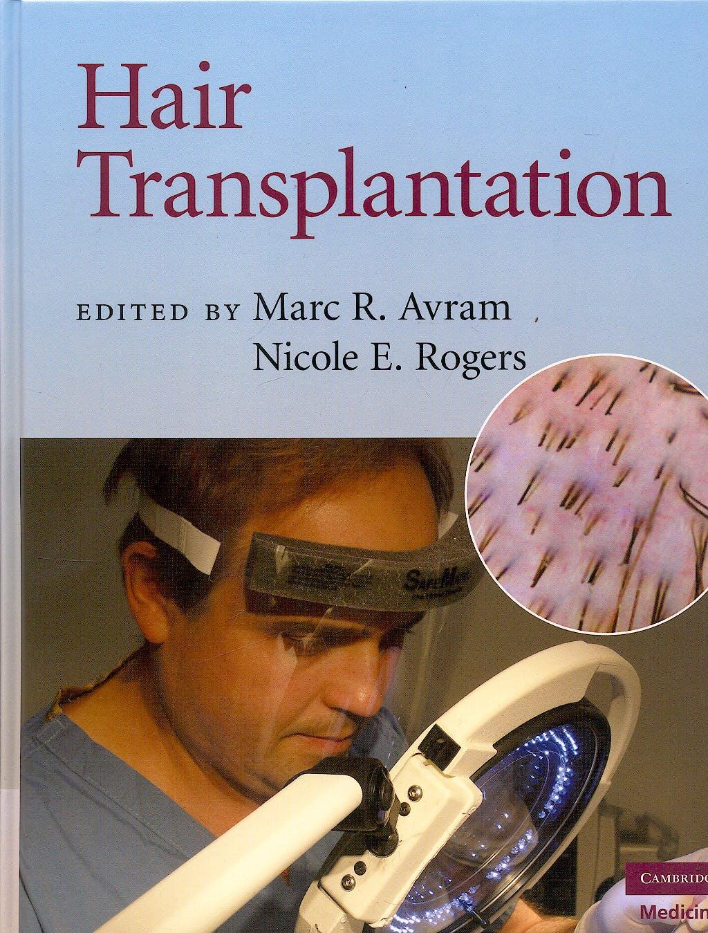 Portada del libro 9780521879675 Hair Transplantation