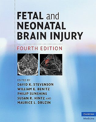 Portada del libro 9780521888592 Fetal and Neonatal Brain Injury