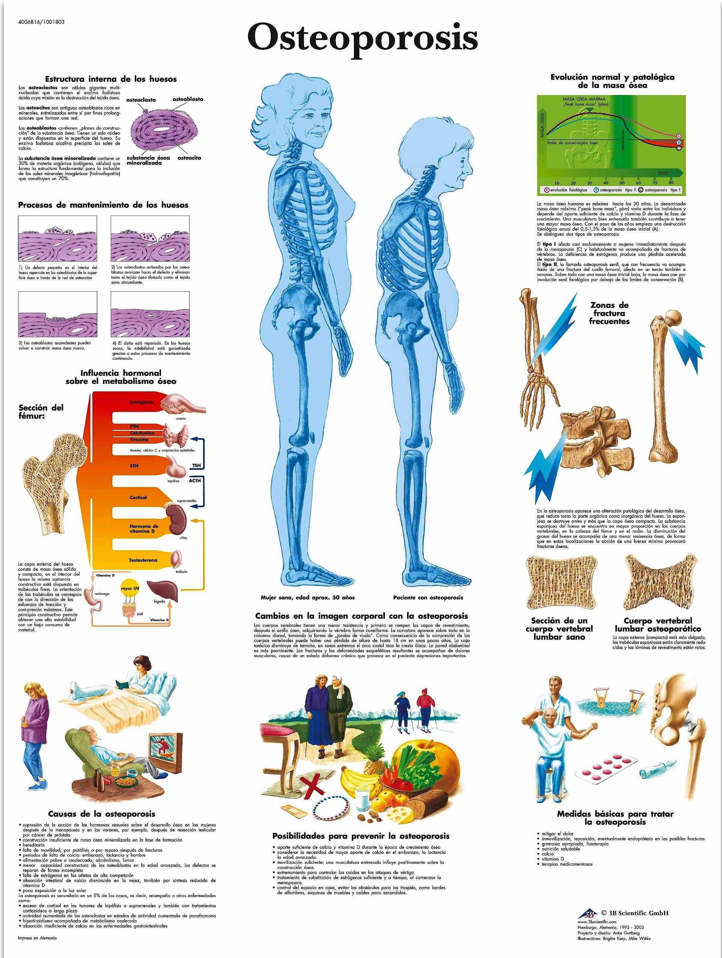 Lámina Osteoporosis (formato 50 x 67 cm.)