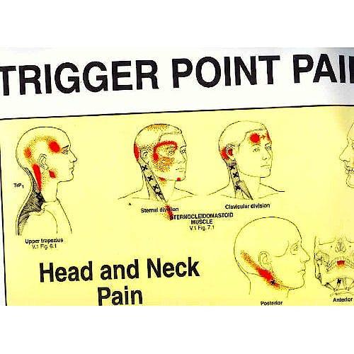 Portada del libro 9780683083682 Travell Trigger Point Pain Charts (2 Laminas)
