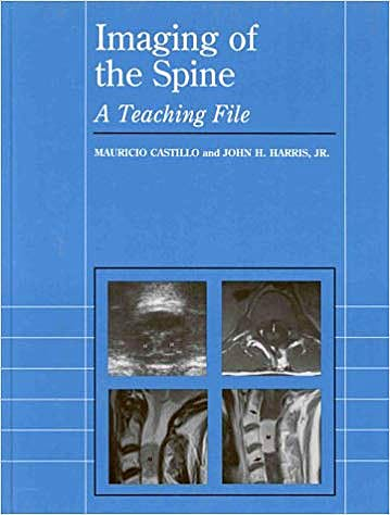 Portada del libro 9780683302448 Imaging of the Spine: A Teching File