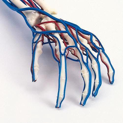 Brazo Vascular