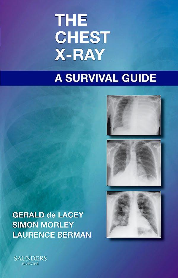 Portada del libro 9780702030468 The Chest X-Ray. A Survival Guide