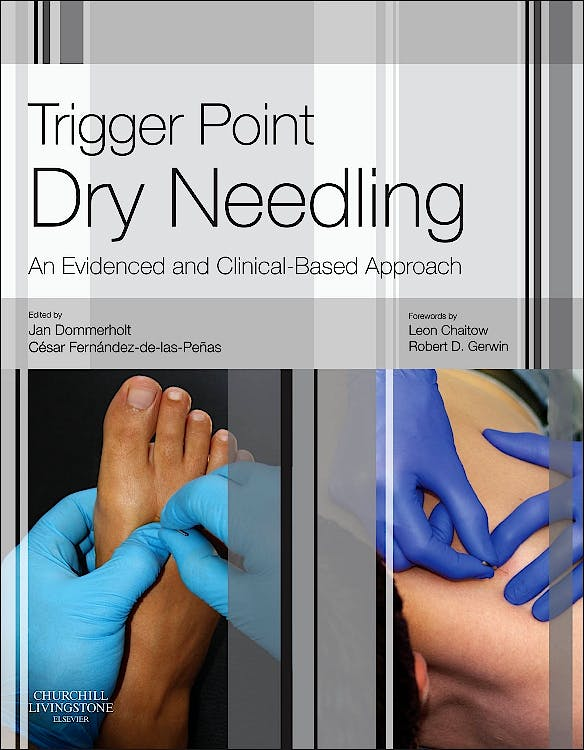 Portada del libro 9780702046018 Trigger Point Dry Needling. An Evidenced and Clinical-Based Approach