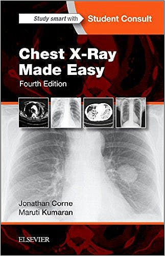 Portada del libro 9780702054990 Chest X-Ray Made Easy