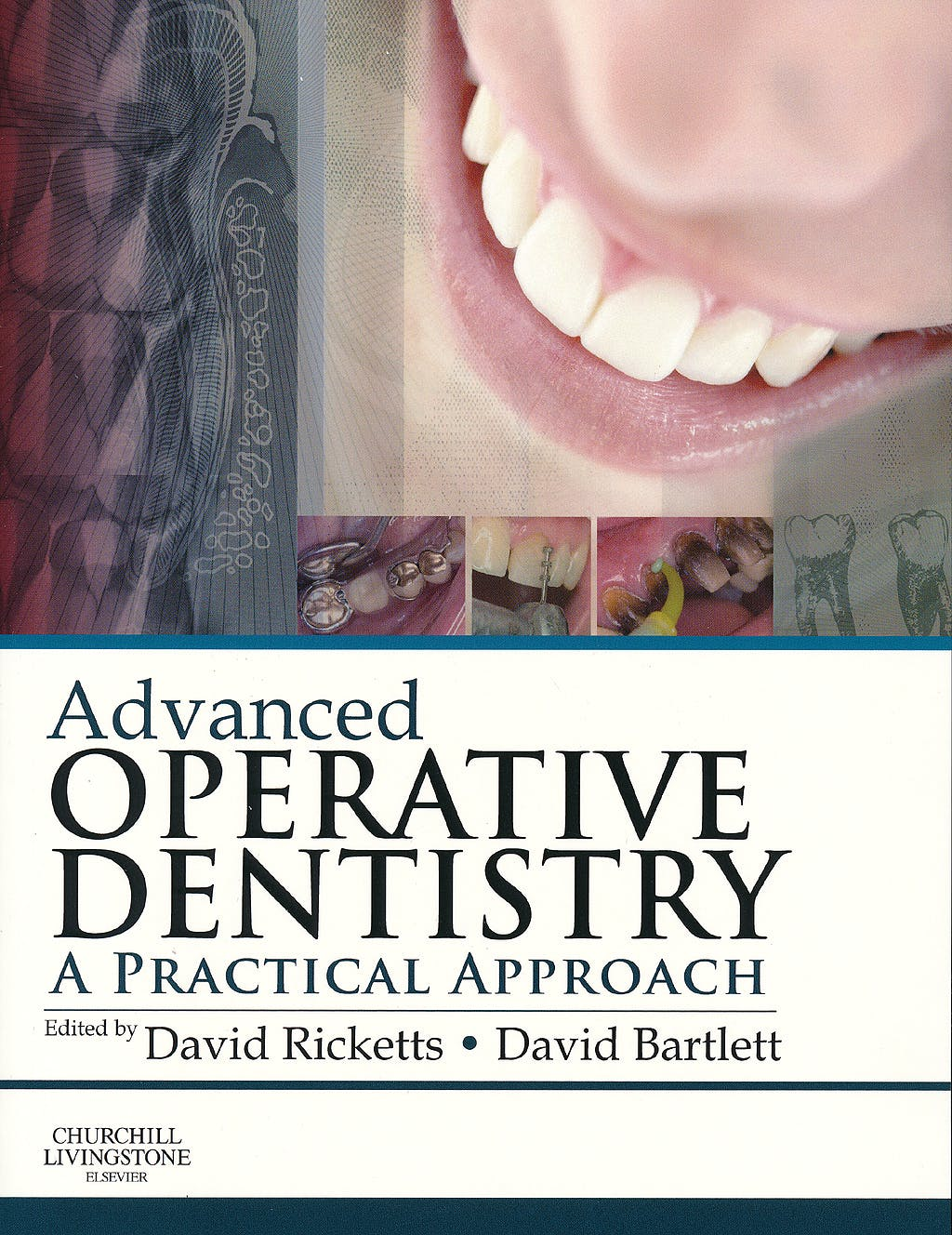 Portada del libro 9780702055386 Advanced Operative Dentistry. a Practical Approach