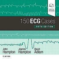 Portada del libro 9780702074585 150 ECG Cases