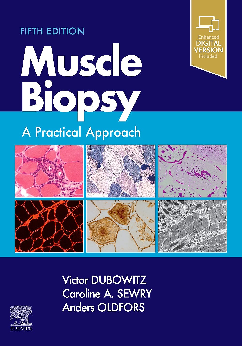 Portada del libro 9780702074714 Muscle Biopsy. A Practical Approach (Print + Online)
