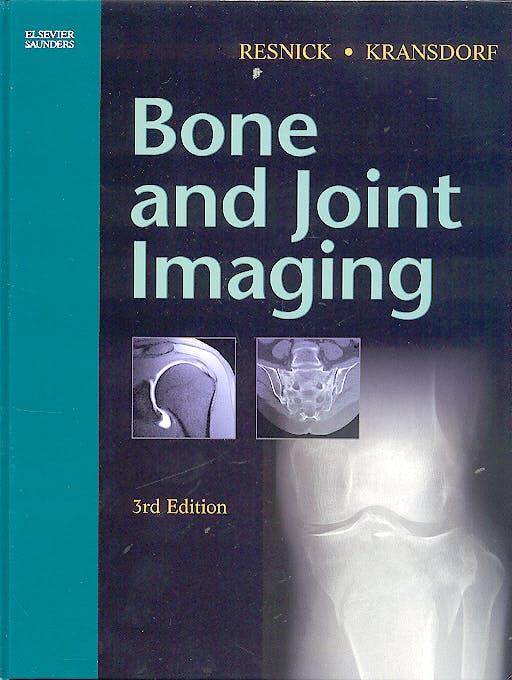 Portada del libro 9780721602707 Bone and Joint Imaging