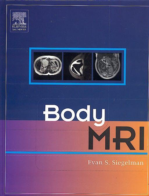 Portada del libro 9780721637402 Body Mri