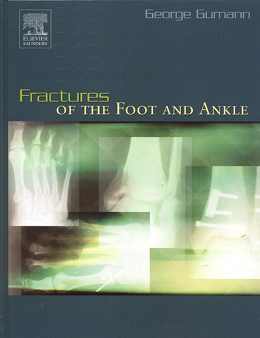 Portada del libro 9780721676555 Fractures of the Foot and Ankle