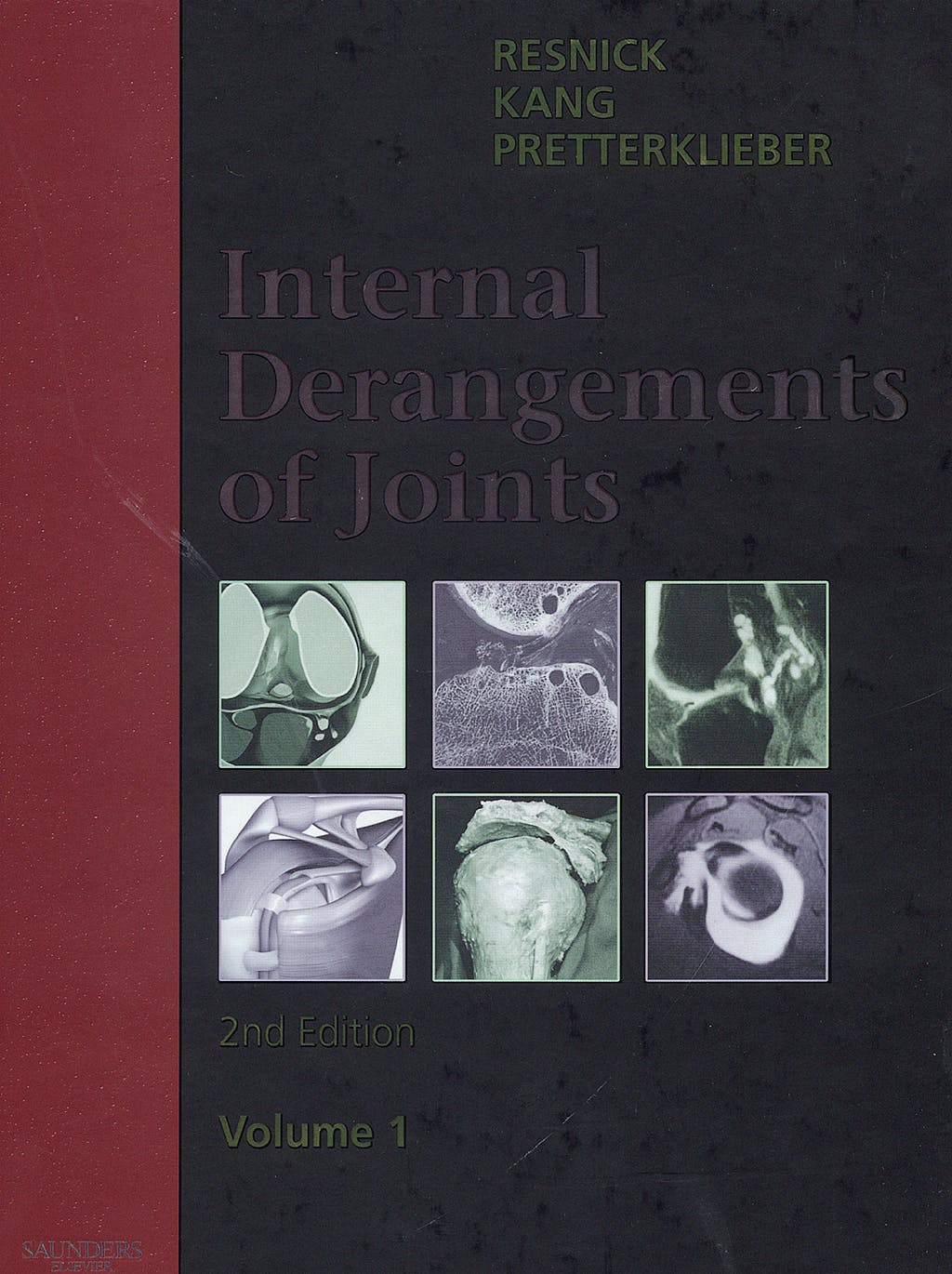 Portada del libro 9780721695525 Internal Derangements of Joint, 2 Vols.