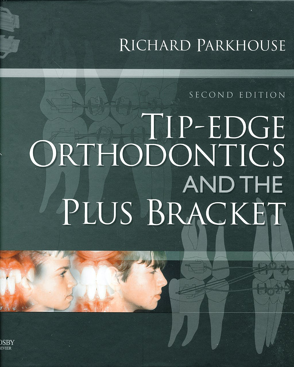 Portada del libro 9780723434818 Tip-Edge Orthodontics and the plus Bracket