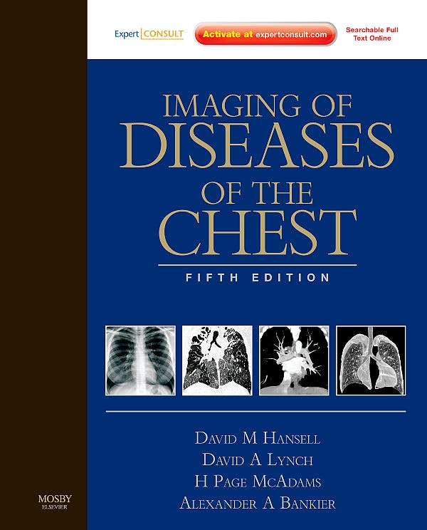 Portada del libro 9780723434962 Imaging of Diseases of the Chest Expert Consult - Searchable Full Text Online