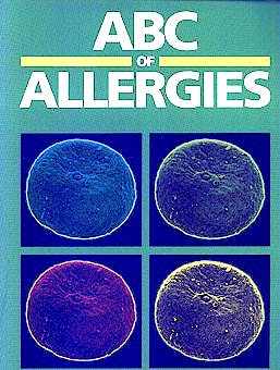 Portada del libro 9780727912367 Abc of Allergies