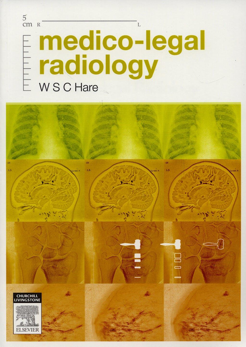 Portada del libro 9780729538312 Medico-Legal Radiology