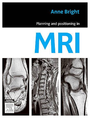 Portada del libro 9780729539852 Planning and Positioning in Mri